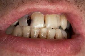 Рот с гнилыми зубами