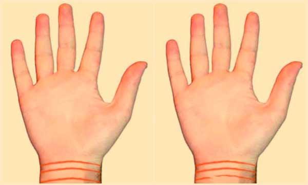 Линии на запястье - браслет здоровья